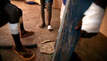 Child Guinea worm patients at a Guinea Worm Case Containment Center in Wantugu. The majority of Guinea worm patients are children, as they are less likely to check if their drinking water has been filtered.